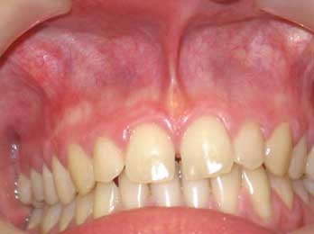отбеливание зубов донецк цены